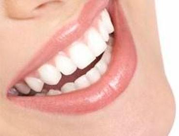 Clínica Corpodental diseño de sonrisa