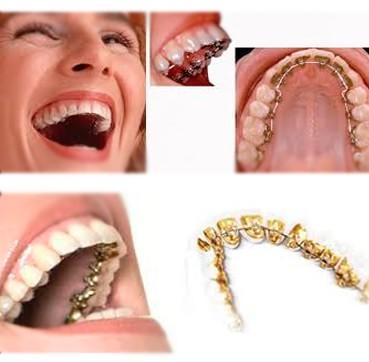 Clinica Corpodental - Ortodoncia Lingual