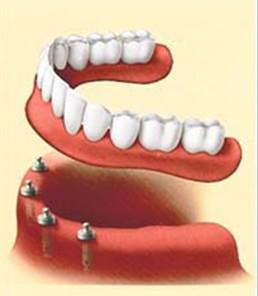 Clinica Corpodental - Galeria implantes dentales 001