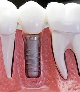 Clinica Corpodental - Galeria implantes dentales 008