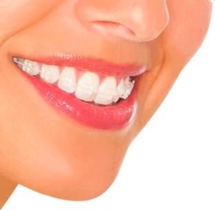 Clinica Corpodental - Ortodoncia Ceramica o Estetica