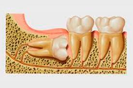 Clínicas Corpodental - Cirugía oral