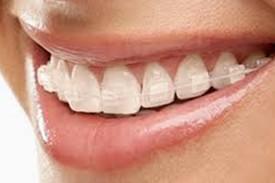 Ortodoncia Zafiro-2
