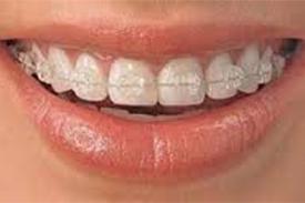 Ortodoncia Zafiro-4