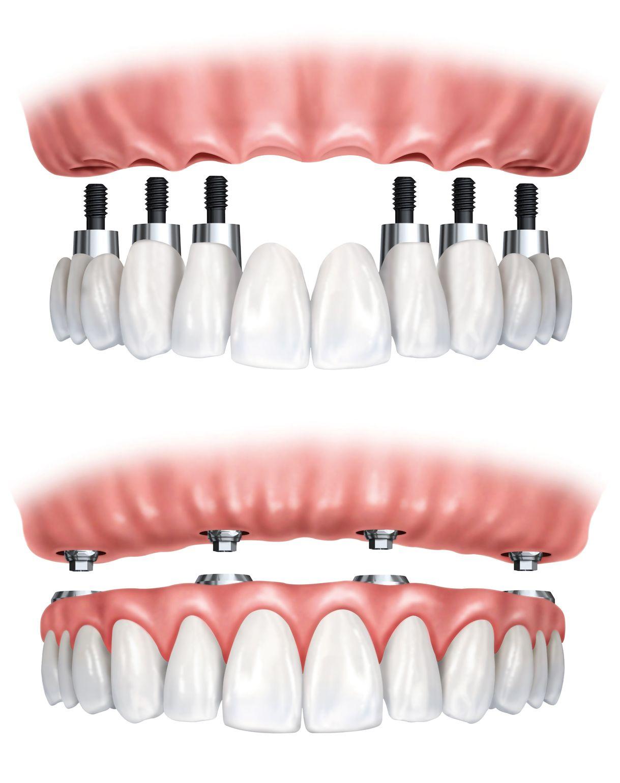 Prótesis dental fija removible