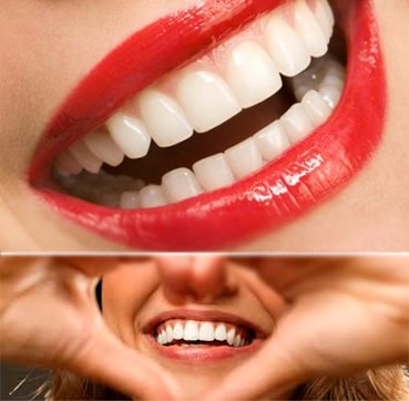 Clinica Corpodental - Blanqueamiento Dental