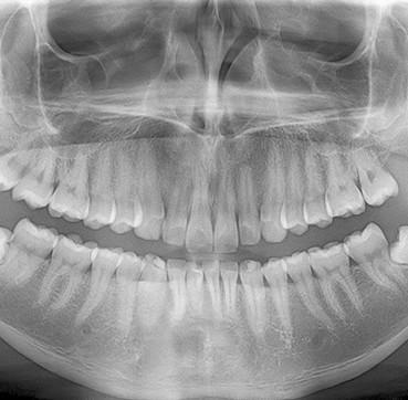 Clinica Corpodental - Ortopantografias