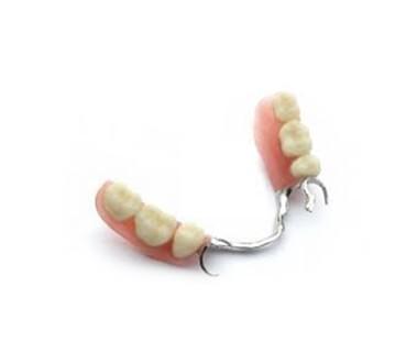 Clínica corpodental - Protesis dentales fijas y removibles