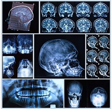 Clinica Corpodental - Telerradiografia