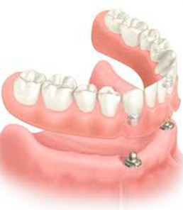 Clinica Corpodental - Galeria implantes dentales 002