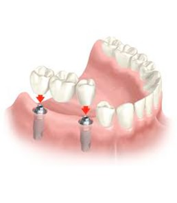 Clinica Corpodental - Galeria implantes dentales 005