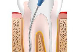 Clinicas Corpodental - Endodoncia