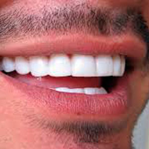 Clínicas Corpodental - Estética dental