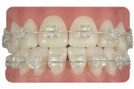 Ortodoncia Zafiro-5