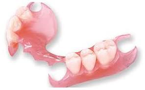 Protesis Removible