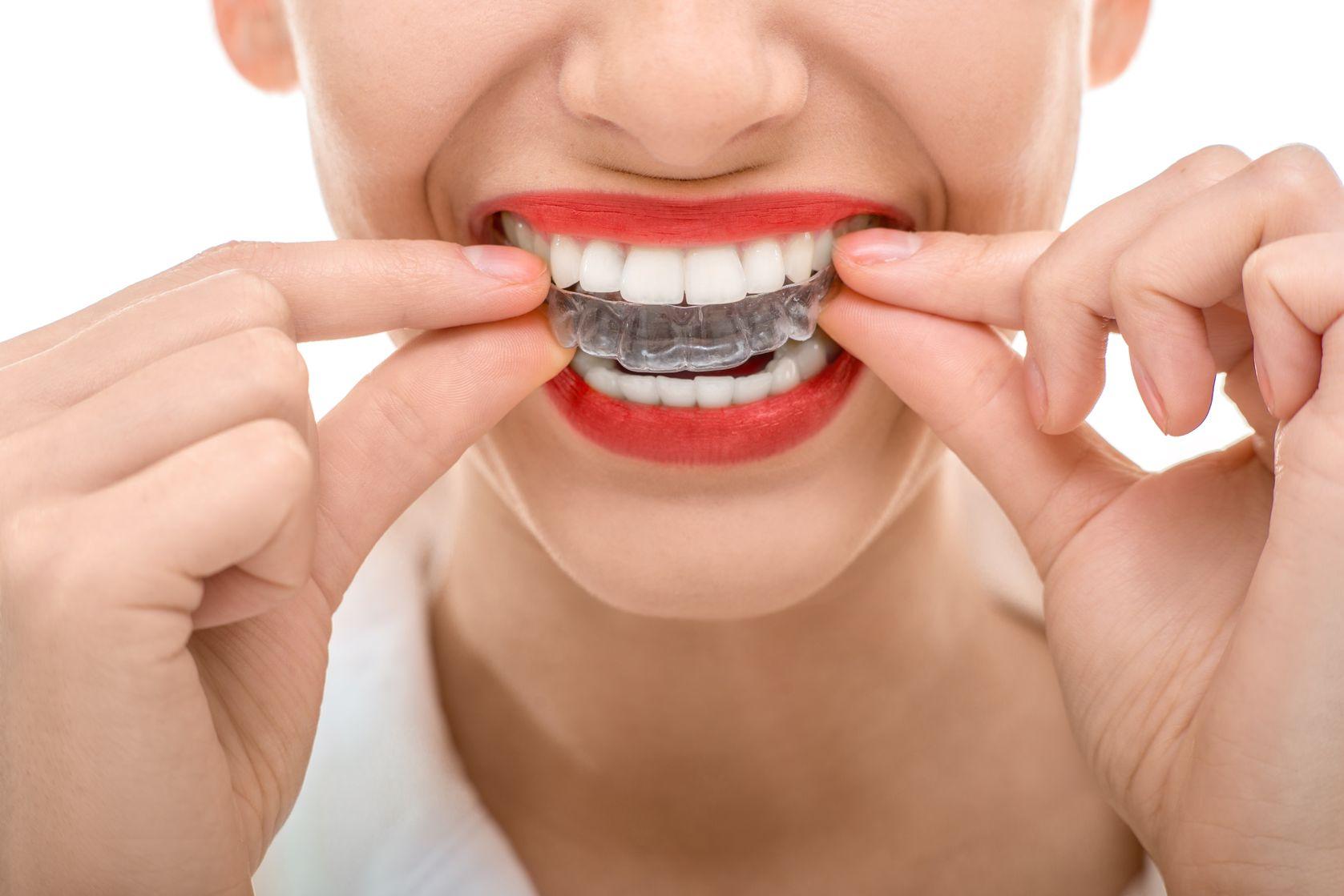 Especialistas en ortodoncia invisible